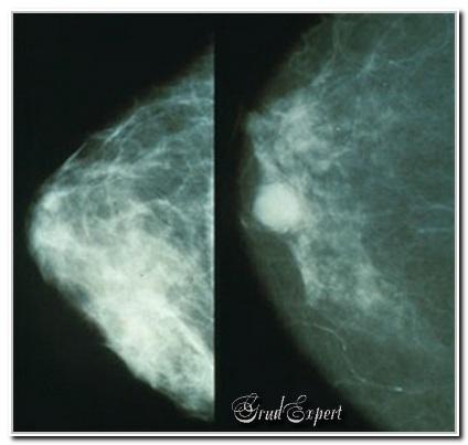 ФКМ на рентгене