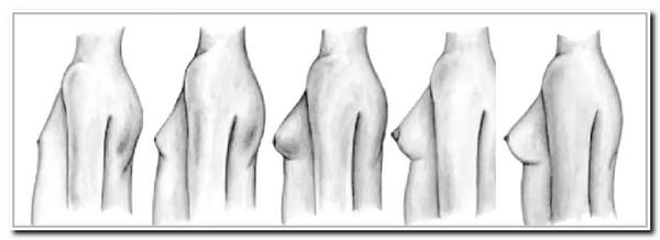 Стадии развития груди