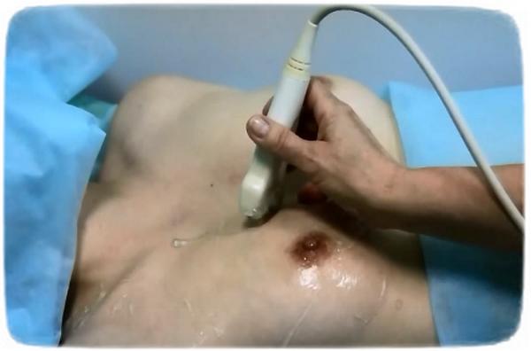 На какой день цикла делать УЗИ молочных желез (груди)