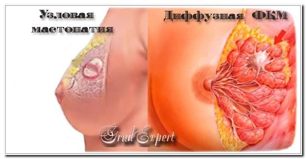 Виды мастопатий - узловая и диффузная