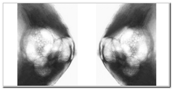 склерозирующий аденоз на рентгене