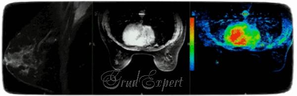 мрт грудных желез с контрастом