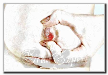 кровянистые выделения из сосков