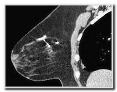компьютерная томография груди