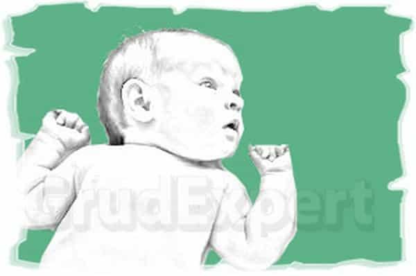 мастопатия у новорожденных