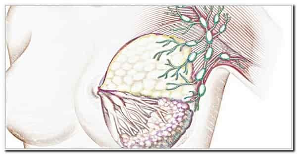 метостазы в лимфоузлы