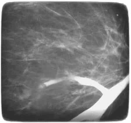снимок дуктографии
