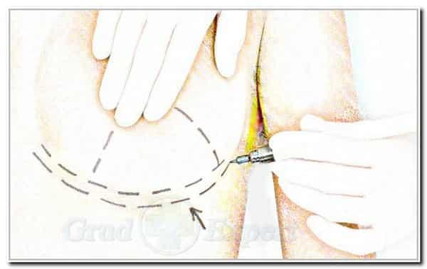 удаление железы