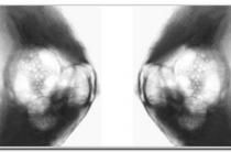 Что такое аденоз молочной железы