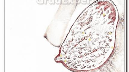 Дуктэктазия молочной железы