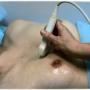 Ультразвуковое исследование молочных желез